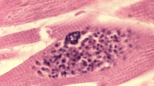 Numerous Trypanosoma gondii bradyzoites inside a myocyte.