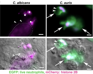 Transgenic larvae with neutrophils expressing cytosolic EGFP (green) and mCherry-tagged histone 2B (red) were infected with Candida by hindbrain injection and imaged after 24 h. Arrowheads indicate yeast cells. Arrows indicate intact neutrophils. Single dots show condensed nuclear material consistent with dead neutrophil fragments. The dotted line outlines the cloud of tagged histone signal. The measurement bars represent 5 µm.