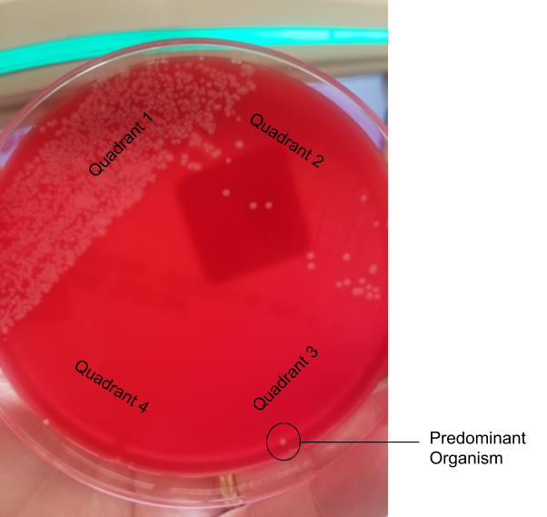 Blood agar plate showing 4-quadrant streaking. A white colony is growing into the third quadrant, making it the predominant organism at moderate growth.