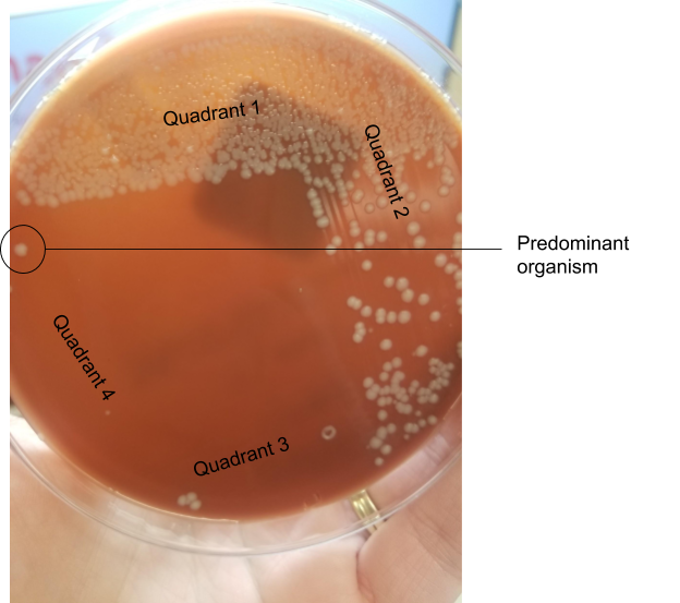 A chocolate agar plate showing 4-quadrant streaking. A large white colony is growing into the fourth quadrant, making it the predominant organism with heavy growth.