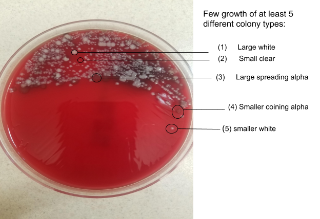 Blood agar plate with 4-quadrant streaking. Growth is seen into the second quadrant, with no predominant organism growing more than the others. There are at least 5 different colony types, suggesting mixed upper respiratory flora.