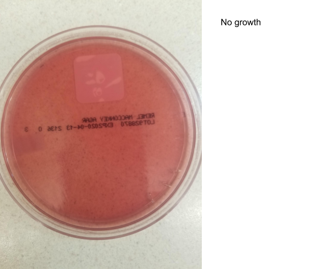 MacConkey agar plate with no bacterial growth.