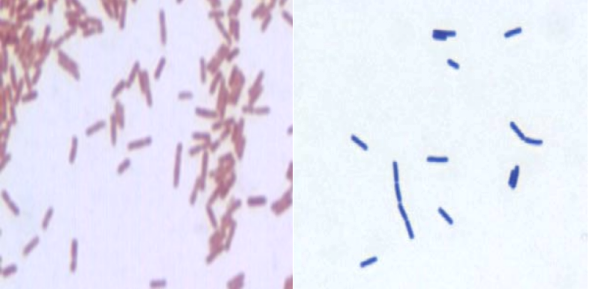 The Gram stain differentiates organisms by the way the react with colored stains: Gram-negative rods (L) stain pink/red; Gram-positive rods (R) stain blue/purple.