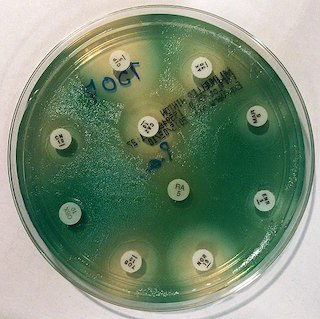 Antibiogram of Pseudomonas aeruginosa on Mueller-Hinton agar.