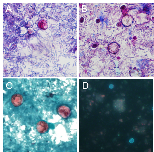 Figure 1: Cyclospora oocysts visualized by microscopy. (A) MAF stained oocyst (B) oocysts without stain retention ('ghost cells') using MAF, (C) oocyst stained with MS, and (D) wet-mount under UV (330-365 nm).  Images A-C captured at 1000X magnification, image D captured at 400X magnification.