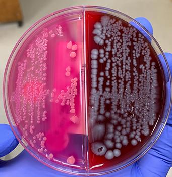 Crescimento de um organismo fermentador de lactose, como Escherichia coli, em uma biplaca de urina com ágar MacConkey (L) e ágar sangue de ovelha (R).