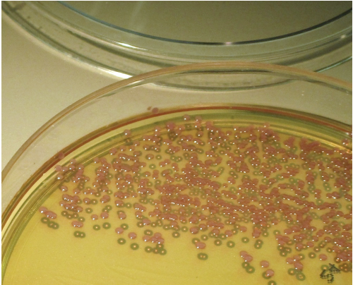 MRSA colonies on chromogenic agar. The media contains cefoxitin to select for MRSA and chromogenic substrates relatively specific to S. aureus enzymatic activity. Pink colonies are presumptive MRSA. Image courtesy M. Pettengill.