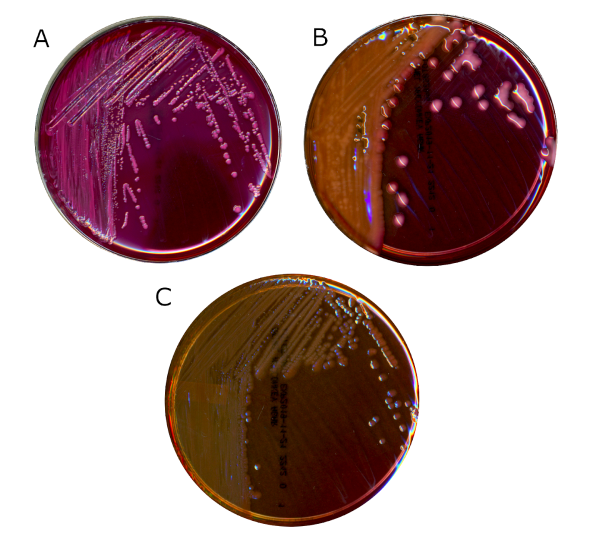 Modern, commercially available MacConkey agar. Panel A shows Escherichia coli, a lactose fermenter. Note the opaque pink bile precipitation around the colonies. Panel B shows Klebsiella pneumoniae, also a lactose fermenter. Colonies are pink, indicating acid production but bile precipitation is absent. Panel C shows Pseudomonas aeruginosa, a lactose non-fermenter.